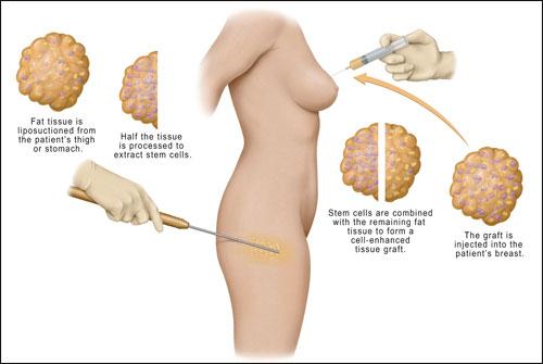 我們用3D雷射掃描計算,一年後自體脂肪隆乳的存活率平均是70%