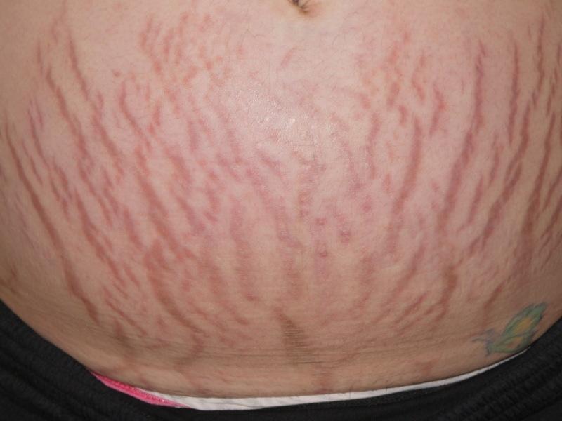 腹部留下明顯的妊娠紋