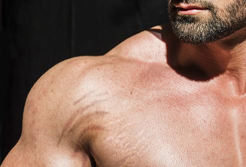 青春期過後即便不胖的人也有可能留下「肥胖紋」