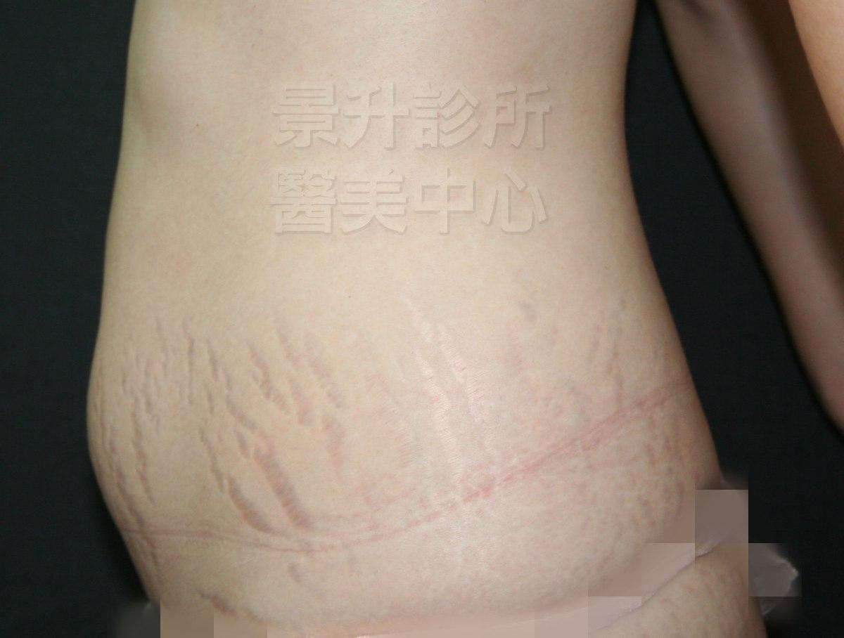 妊娠紋治療前